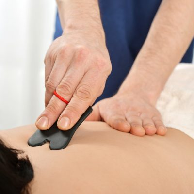 Woman receiving gua sha acupuncture treatment on back